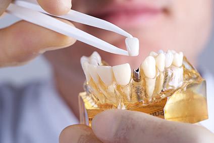 Implantologie Zuffenhausen Zahnarzt