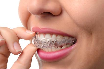 Schienentherapie Zahnarzt Zuffanhausen