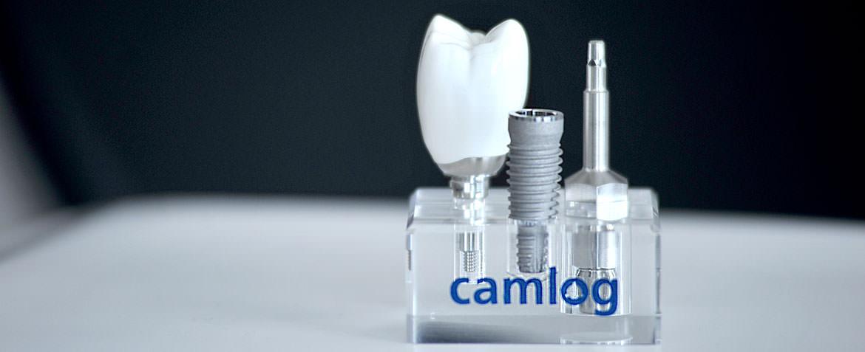 Zahnarztpraxis Stuttgart – Implantologie, Implantate