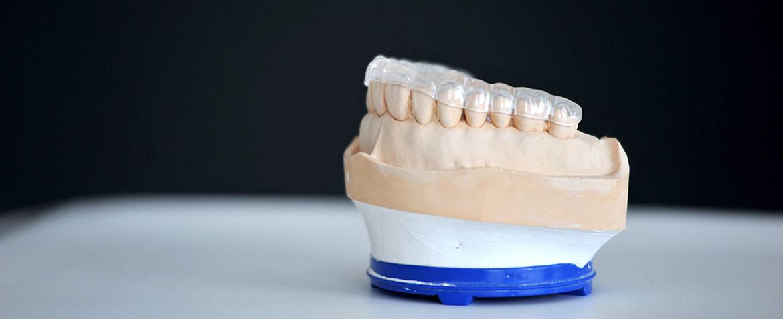 Zahnarztpraxis Stuttgart – Schienentherapie
